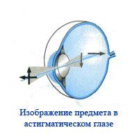 Операция на глаза близорукость в 50 лет
